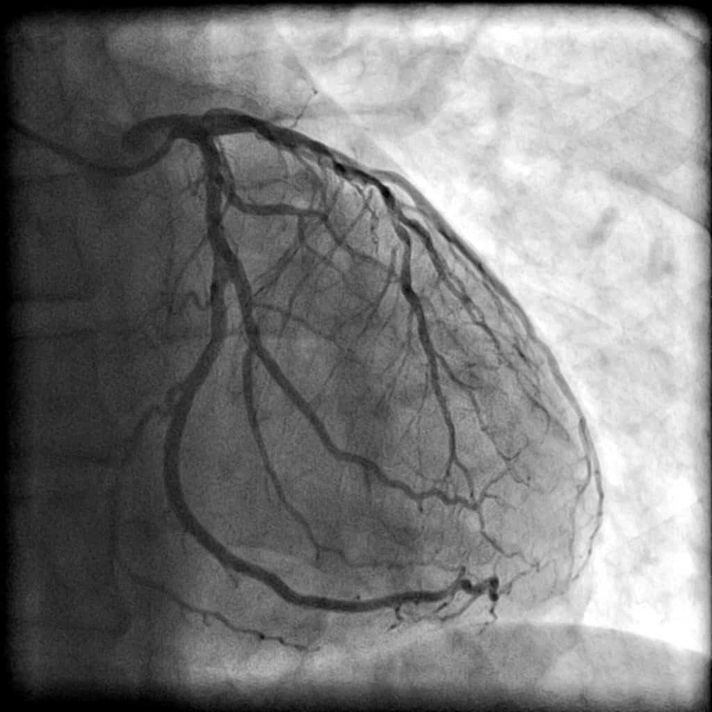 Image of coronary artery